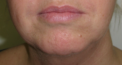 Jowls And Jawline Bexley Swanley Persona Cosmetic Medicine