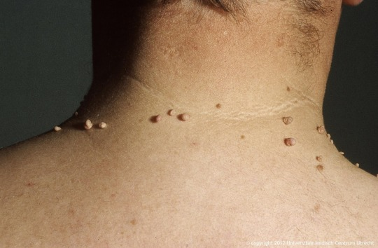 Skin Tags - Eyelids, Neck, Armpits, Groin, Breast | Kent