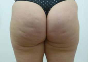 Stubborn Fat Kent | Stretch Marks Kent | Buttock Fat Kent