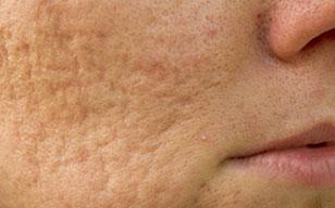 Facial Scarring Kent | Acne Scars Kent | Skin Discoloration Kent