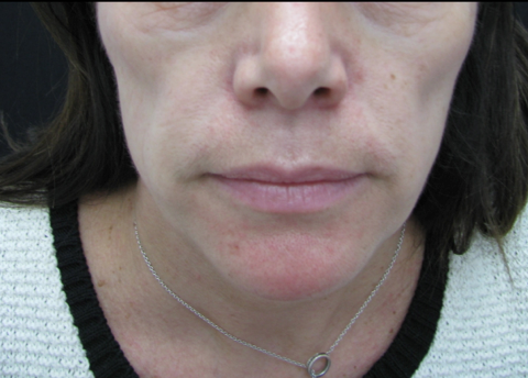 Picture showing hollowing of cheeks from cheek volume loss