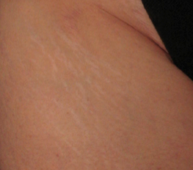 Stretch Marks Kent | Rapid Weight Gain Kent | Overstretched Skin Kent