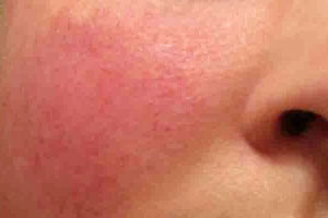Rosacea Kent | Facial Redness Kent | Cheek Redness Kent