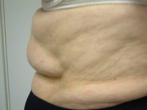 Excess Weight Kent | Stomach Fat Kent | Unwanted Fat Kent