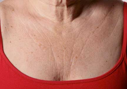 Chest Lines & Wrinkles Kent | Chest Pigmentation Kent | Chest Sun Spots Kent