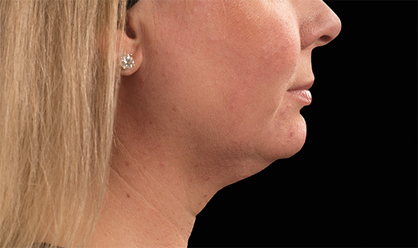 Double Chin Kent | Excess Fat Kent | Loose Skin Kent