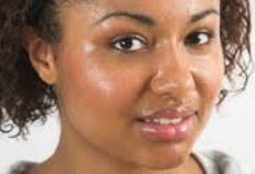 Facial Sweating Kent | Hyperhidrosis Kent | Sweat Excessively Kent