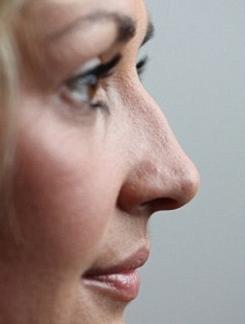 Pinched Nose Kent | Bunny Lines Kent | Flat Nose Kent