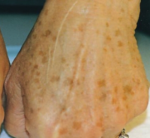 Hand Fine Lines & Wrinkles Kent | Hand Prominent Veins Kent