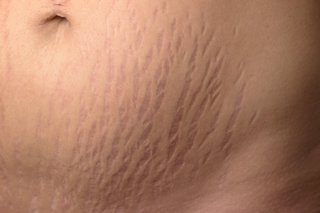 Stretch marks on stomach