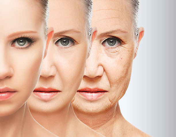 a picture showing wrinkles generating through the ages procsess